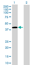 Western blot - ADAMTSL4 antibody (ab71838)