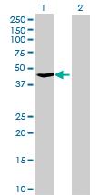 Western blot - TBC1D13 antibody (ab71839)