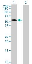 Western blot - TRIT1 antibody (ab71843)