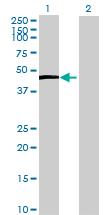 Western blot - ZCCHC2 antibody (ab71848)