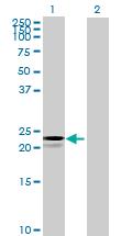 Western blot - HEATR2 antibody (ab71856)