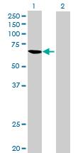 Western blot - DOCK7 antibody (ab71858)