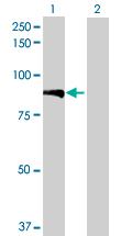 Western blot - KBTBD7 antibody (ab71862)