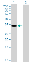 Western blot - TBC1D3 antibody (ab71863)