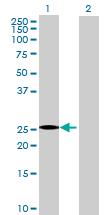 Western blot - RG9MTD1 antibody (ab71865)