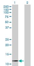 Western blot - RHBDL2 antibody (ab71866)
