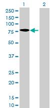 Western blot - ZCPW1 antibody (ab71870)