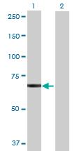 Western blot - SRBD1 antibody (ab71874)