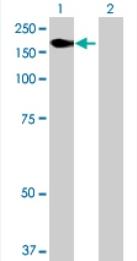Western blot - KIAA1618 antibody (ab71892)
