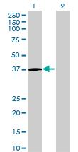Western blot - C3orf38 antibody (ab71899)