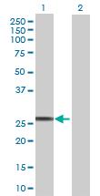 Western blot - NMNAT3 antibody (ab71904)