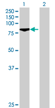 Western blot - ALS2CR11 antibody (ab71946)