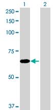 Western blot - EFHB antibody (ab71950)