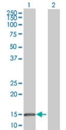 Western blot - GBA3 antibody (ab71975)