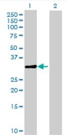 Western blot - NSE2 antibody (ab71976)