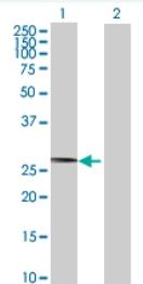 Western blot - CCNB1IP1 antibody (ab71977)