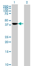 Western blot - SQRDL antibody (ab71978)