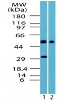 Western blot - GPCR TGR5 antibody (ab71988)