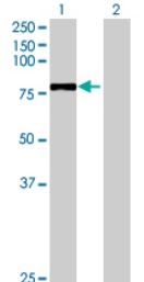 Western blot - ZBED5 antibody (ab71990)