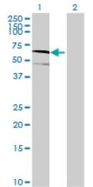 Western blot - EFHA2 antibody (ab71991)