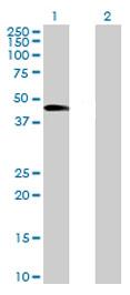 Western blot - WDR19 antibody (ab71997)