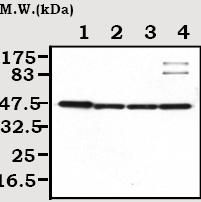 Western blot - Creatine Kinase MB antibody [46A1] (ab72002)