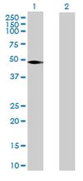 Western blot - VNN2 antibody (ab72010)