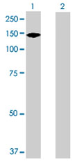 Western blot - SAPS2 antibody (ab72011)