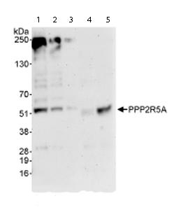 Western blot - PPP2R5A antibody (ab72028)