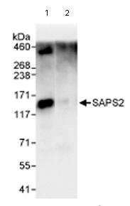 Immunoprecipitation - SAPS2 antibody (ab72031)