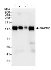 Western blot - SAPS2 antibody (ab72032)