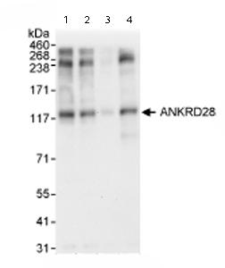 Western blot - ANKRD28 antibody (ab72037)