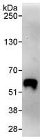 Immunoprecipitation - KAT8 / MYST1 / MOF antibody (ab72056)