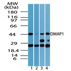 Western blot - DMAP1 antibody (ab72072)