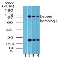 Western blot - Dact1 / Dapper homolog 1 antibody (ab72078)