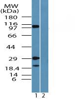 Western blot - Axl antibody (ab72084)