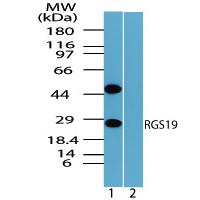 Western blot - RGS19 antibody (ab72085)