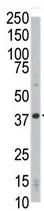 Western blot - Cdk4 antibody - C-terminal (ab72090)