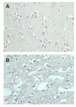 Immunohistochemistry (Formalin/PFA-fixed paraffin-embedded sections) - FMNL2 antibody (ab72105)