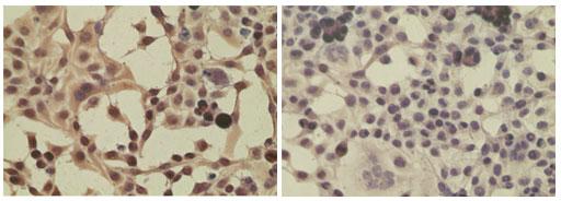 Immunocytochemistry - Importin 8 antibody (ab72109)