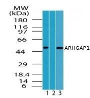Western blot - ARHGAP1 antibody (ab72127)