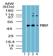 Western blot - PBEF antibody (ab72128)