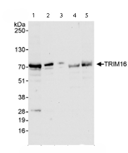 Western blot - TRIM16 antibody (ab72129)
