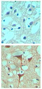 Immunohistochemistry (Formalin/PFA-fixed paraffin-embedded sections) - Smoothened antibody (ab72130)