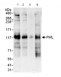 Western blot - PML Protein antibody (ab72137)