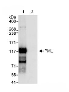 Immunoprecipitation - PML Protein antibody (ab72137)
