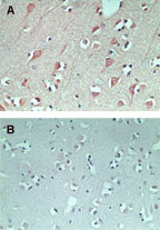 Immunohistochemistry (Formalin/PFA-fixed paraffin-embedded sections) - FAM3C antibody (ab72182)