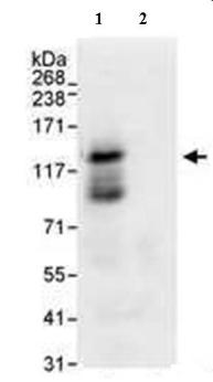 Immunoprecipitation - USP37 antibody (ab72199)