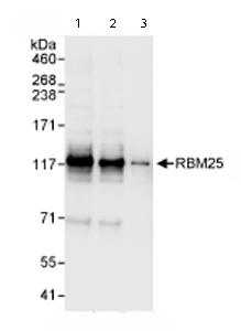 Western blot - RBM25 antibody (ab72237)