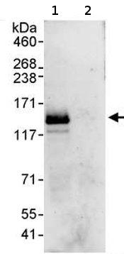 Immunoprecipitation - SMARCA1 antibody (ab72287)